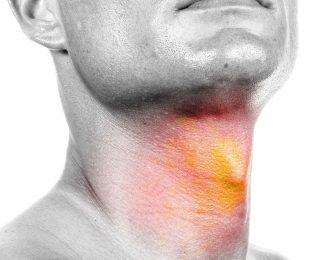 Cancers tête et cou : l'importance de l'hygiène bucco-dentaire